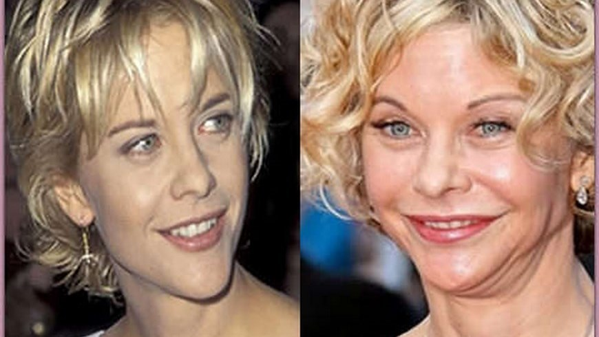 Meg Ryan Before And After Plastic Surgery Pictures Of