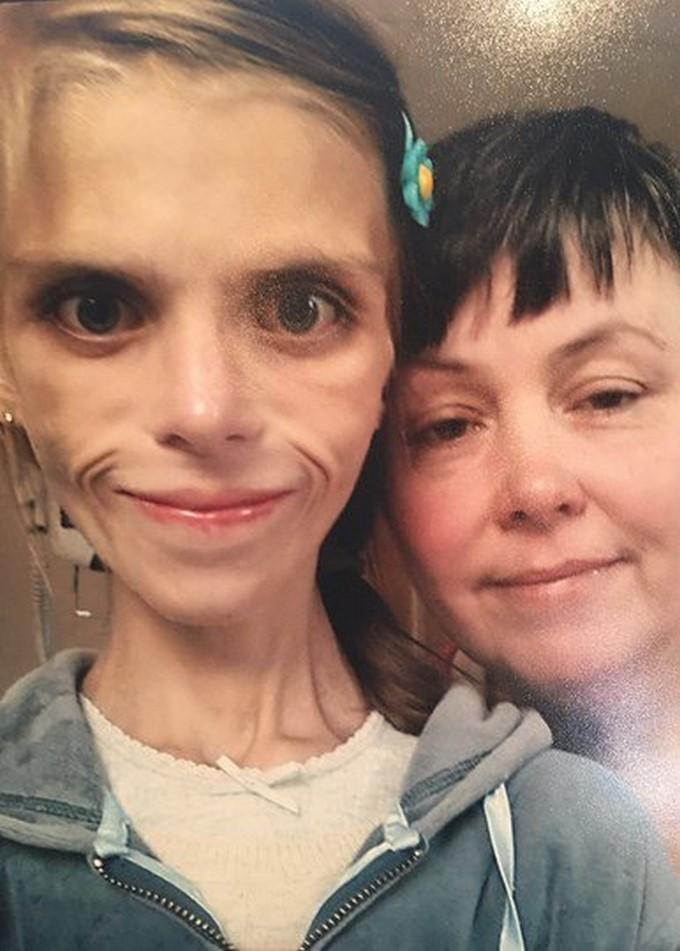 Pippa McManus y su madre/ Propiedad de Daily Mail.