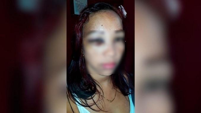 Cindy Anguila, mujer que denunció agresión de policías en Malambo, Atlántico